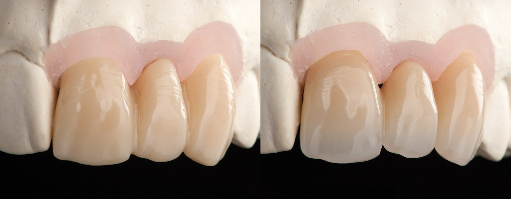 https://smile-on-time.com/en/services/full-anatomic-all-contour-restorations/