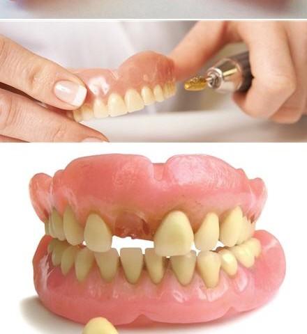 denture-repair-examples166